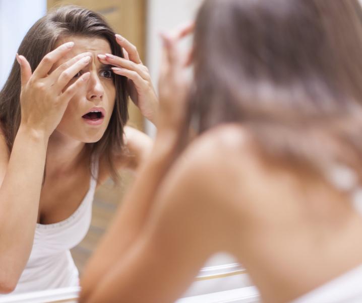 20. Lecke – Pattanásos az arcod? Megszabadulnál tőlük?